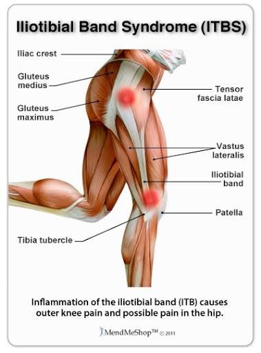 iliotibial band syndrome treatment