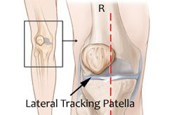 lateral tracking patella sheboygan wi